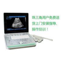计划生育B超机 乡村诊所卫生院产科便携式黑白B超诊断医用设备