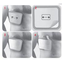 克瑞普胸腔固定夹板(胸部护板)产品推广 售后服务 高分子材料